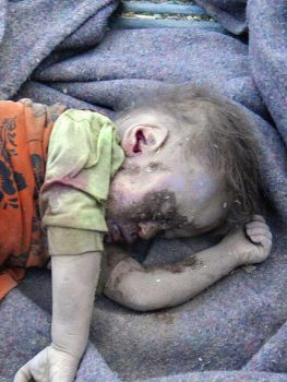 شاهد بالصورة: المجزرة التي ارتكبها طائرة العدوان في منطقة الطلح بصعدة.